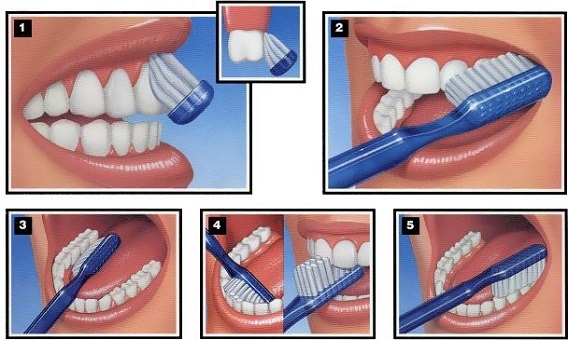 Right ways to brush your teeth
