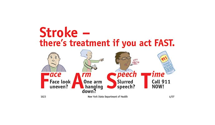 Recognize Signs of Stroke and Act FAST  DailyCaring
