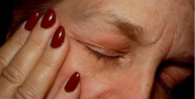 eyelid dermatitis xeroderma of