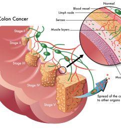 colon polyp diagram [ 2365 x 1773 Pixel ]