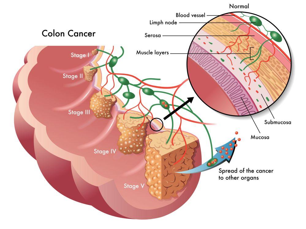 medium resolution of colon polyp diagram
