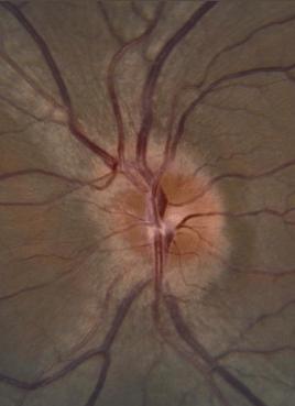 left optic neuritis AAO