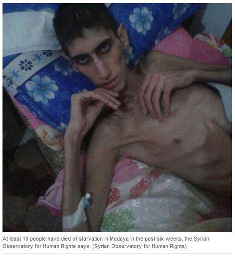 1-CBC-fake-photos-Madaya-Syria