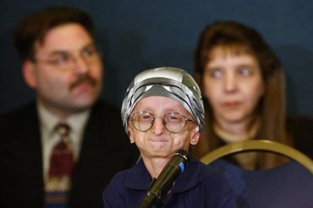 Proč děti předčasně stárnou?Britským vědcům se podařilo rozluštit záhadu předčasného stárnutí, které způsobuje nemoc označovaná jako progeria. Tato nemoc postihuje jednoho člověka ze čtyř milionů a projevuje se trpasličím vzrůstem, plešatostí a zestárlou pokožkou. Nemocní pak umírají ve věku kolem třinácti let na srdeční záchvaty či mrtvici.