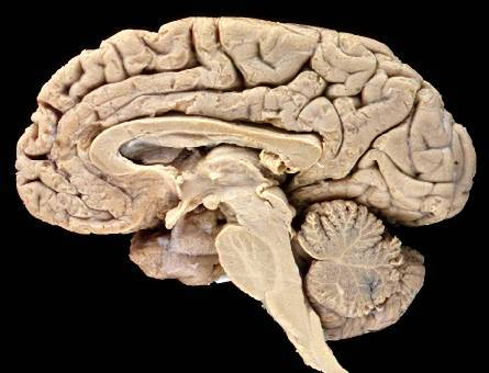 Podle odhadů trpí zákeřnou nemocí jen v Americe na čtyři miliony lidí. Problémem je, že přesnou diagnózu se v případě Alzheimera podaří stanovit až po smrti pacienta. Teď by se to ale mohlo změnit.