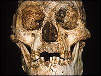 Nález trpasličího tvora na indonéském ostrově změnil pohled antropologů na vývoj člověka. Nyní odborníci vyloučili, že by Homo floresiensis trpěl nějakou mozkovou poruchou!