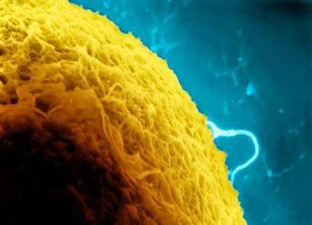 Česko-americkému vědeckému týmu se nedávno podařilo v laboratoři vyšlechtit jednu z nejdůležitějších lidských buněk - vajíčko.