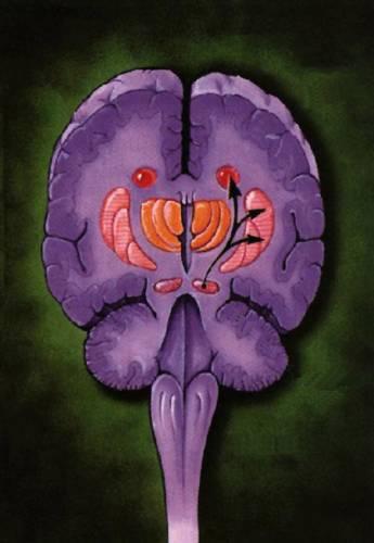 Vědci si již dlouhou dobu lámou hlavu nad problémem, jak vyléčit nebo nahradit poškozené či odumřelé mozkové buňky, aby se plně obnovila jejich funkce. Teď však pacientům s touto chorobou svitla naděje.