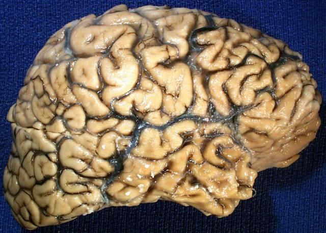 Před sto lety německý psychiatr Albert Alzheimer popsal nemoc, která byla později podle něho pojmenována.