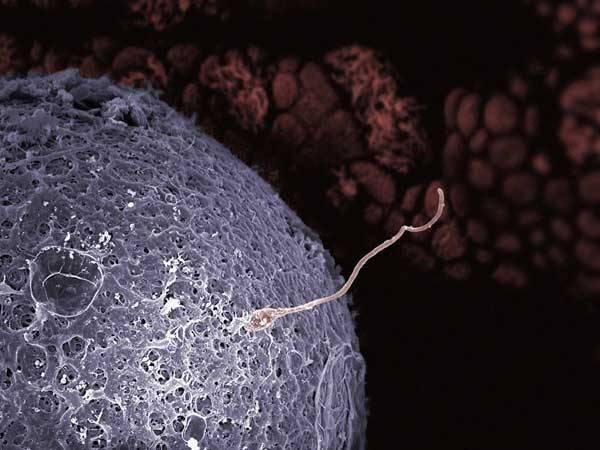 Genová léčba ex vivo, genová léčba in vivo nebo genová léčba in utero...