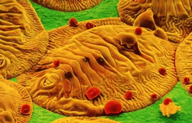 Barevný snímek z elektronového mikroskopu nám tentokrát představuje v detailu nymfy bílé molice (Aleurodoiea). Tyto drobné molice patří k jedněm z nejnebezpečnějších škůdců, kteří napadají jak hospodářské plodiny, tak i například domácí květiny.