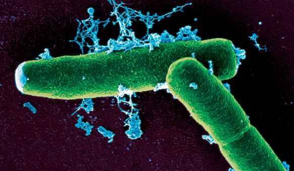 Infekce (nákaza) označuje skutečnost, že do organismu pronikly choroboplodné zárodky – především bakterie, viry, chlamydie, rickettsie a plísně. V těle se pomnoží a po určité době (tzv. inkubační, trvající několik hodin až let) nutné k rozvoji onemocnění, se objevují symptomy (příznaky), typické pro danou infekci.