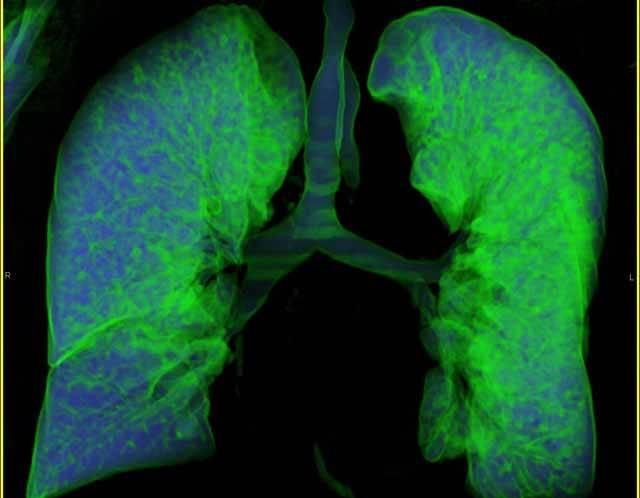 Jak ukazují nejnovější údaje Světové zdravotnické organizace, již za 10 let bude onemocnění plic třetí nejčastější příčinou úmrtí na světě. Počet nemocných hrozivě stoupá a šance na vyléčení většiny stále závažnějších plicních chorob jsou podle odborníků minimální. Jedinou cestou záchrany nemocných je často pouze transplantace plic.