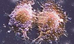 Imunoterapie může zastavit rakovinu prostaty
