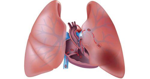 Lze léčit embolii doma?