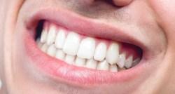 K zubaři bez strachu z bolesti?