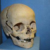 V kutnohorské kostnici vědci narazili na oběti hladomoru i morových epidemií