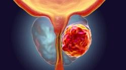 Včasná diagnostika odhalí rakovinu prostaty i o 10 let dříve