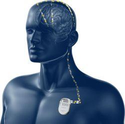 Nová technologie v léčbě Parkinsonovy nemoci