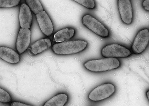 Češi objevili novou bakterii