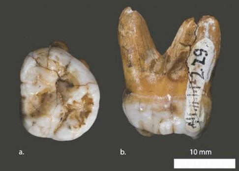 Naše zubní kořeny? Dědictví po Homo erectus!