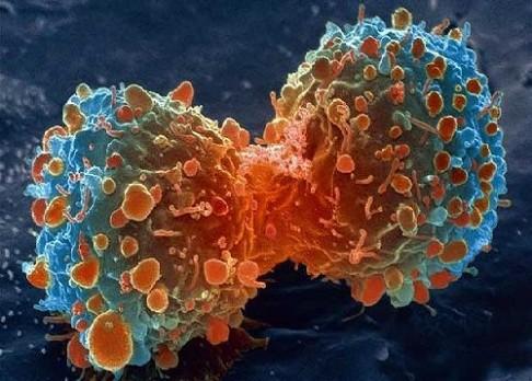 Jak stará je rakovina?