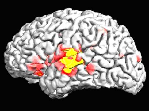 Mají Asiaté jiné mozky?