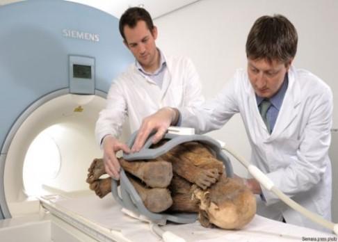 Problémy mumií s cévami