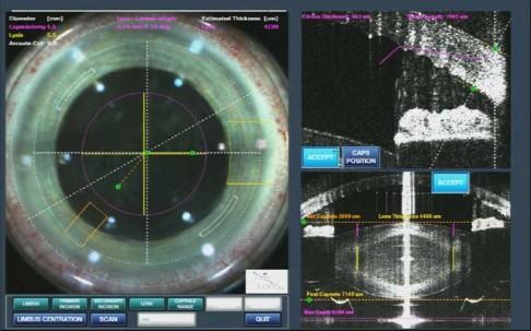 Jak funguje laser, který léčí šedý zákal?