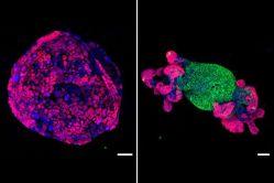 Oprava genu zlikviduje rakovinu