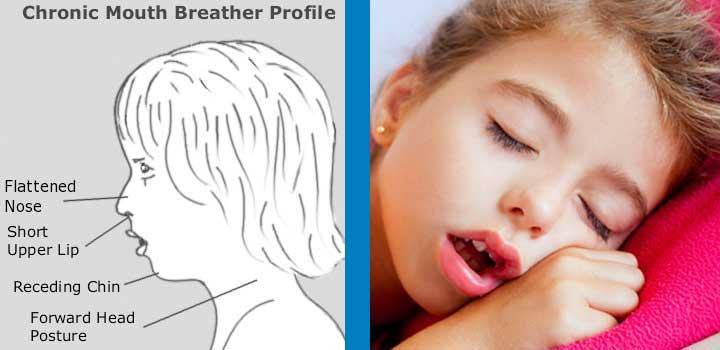 【過敏性鼻炎】抗組織胺。類固醇治過敏性鼻炎是無效的 - 恩加(中西醫)診所
