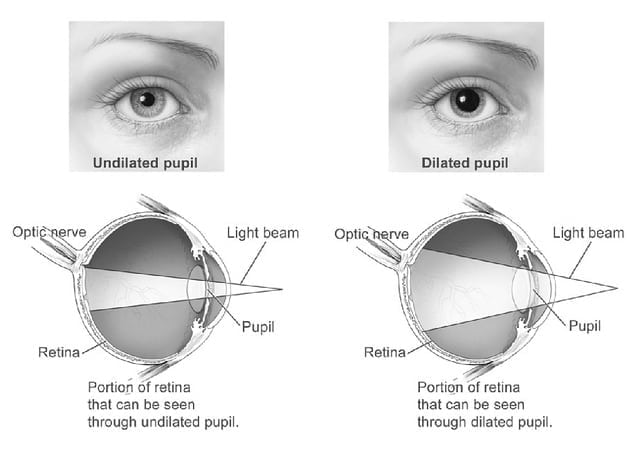 How Long Do Your Eyes Stay Dilated After Exam? - Image ...