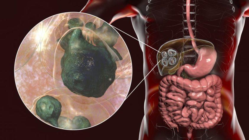 Ascaris emberi pinworm milyen gyógyszer a pinworms kezelésére