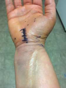 carpal tunnel surgery recovery
