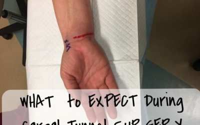 Carpal Tunnel Surgery: What to Expect During the Procedure
