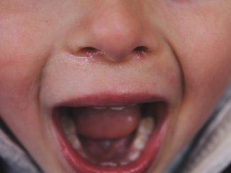barn baby gråd græder