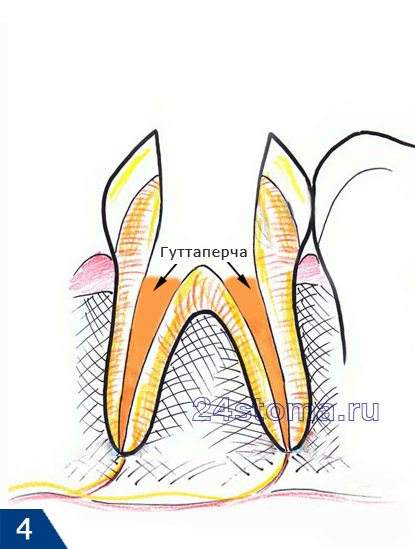 Guttoughter Root Canal Seal.