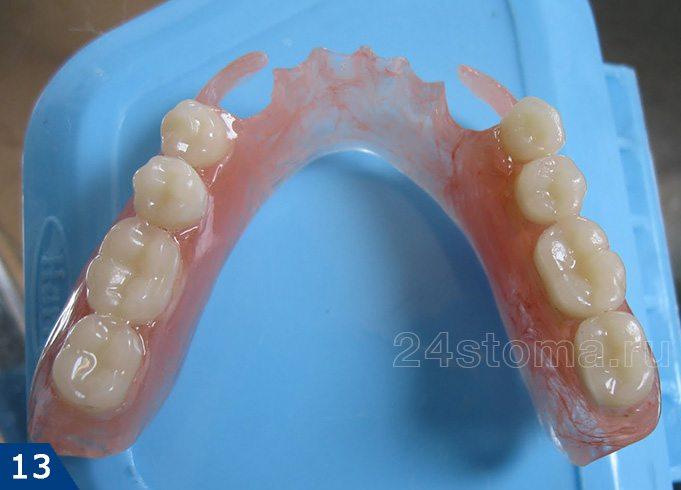 پروتز پروانه دندان برای 1sub