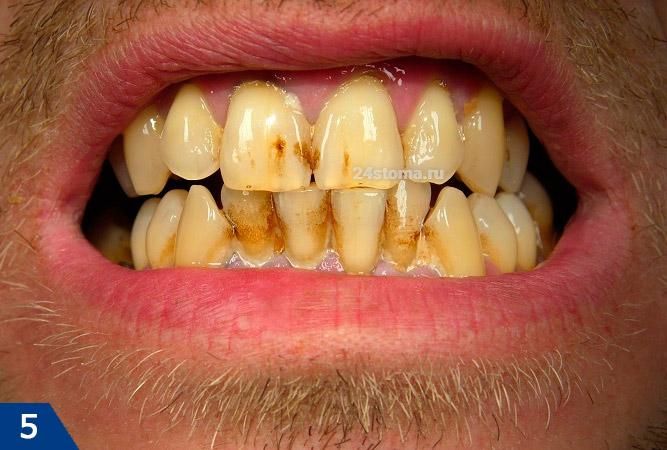 Zwarte buizen op de tanden geassocieerd met de activiteit van actinomycetes en het storten van onoplosbare zouten van ijzer
