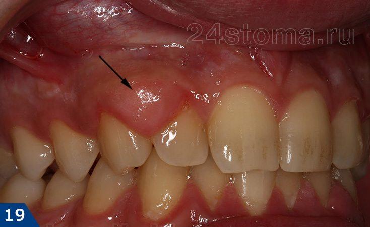 شکل فیبری گینوییت هیپرتروفی، موضعی در منطقه دو دندان از جویدن بالا قرار گرفته است