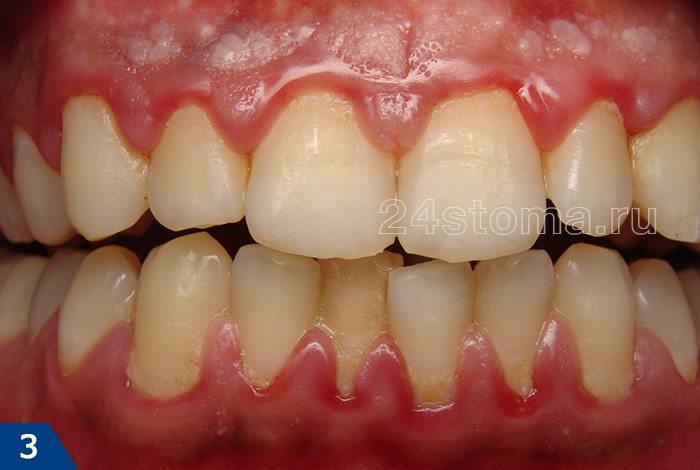 カチオン歯肉炎(歯の首の周りの柔らかい歯のプラークのクラスター、ならびに歯茎の発赤に注意を払う