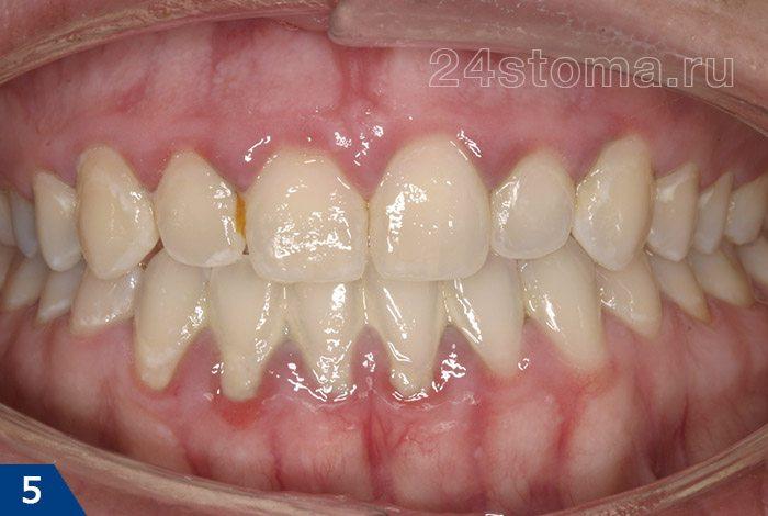 Gingivitis کاتارالی (ظاهری چسبندگی لبه لبه، که با فقدان عدم وجود پلاک نرم، نشان دهنده حضور رسوبات دندانپزشکی مناسب است)