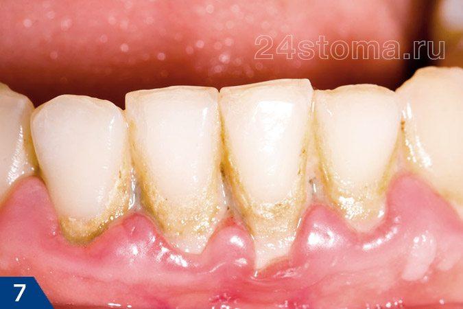 خوشه های یک پلاک میکروبی نرم، و همچنین پلاک میکروبی معدنی در گردن دندان ها