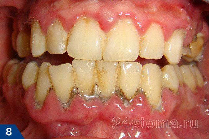 ほとんどの歯の首にある多数の固体歯科堆積物