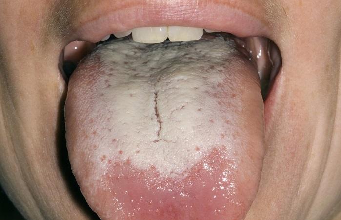 Abundante colapso microbiano en la parte posterior y raíz del idioma