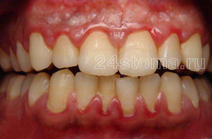 A fogak nyakában lévő puha mikrobiális plakk klaszterei (a gumi gyulladásának tünetei - gingivitis)