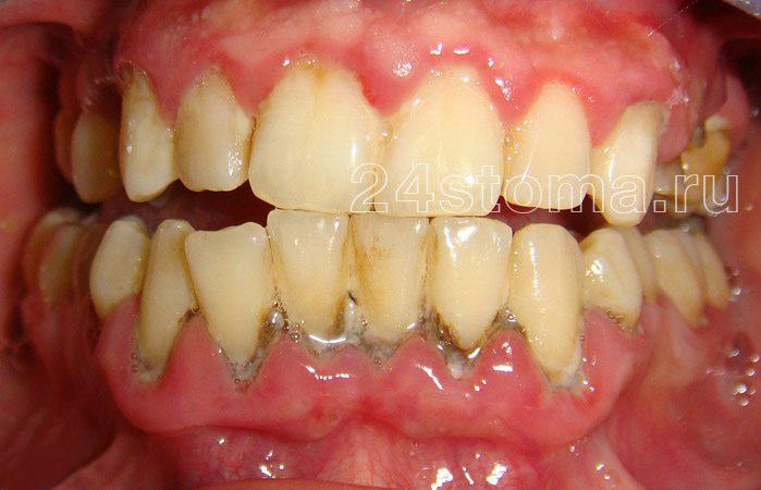Szilárd és illeszkedő fogászati lerakódások az alsó fogak területén (az ínygyulladás tünetei - a gyulladás - a periodontitis, beleértve a periodontális zsebektől elválasztott szennyezőanyagot is)