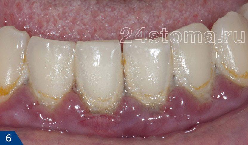 Chronická gingivitida (tam je ostrá lhavost a otok dásní, akumulace mikrobiální plaky v krku zubů)