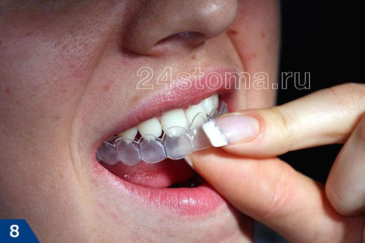 Пациент надевает индивидуальную каппу на верхние зубы