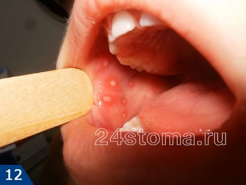 Герпетический стоматит на слизистой оболочке щеки